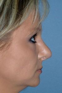 Cochran-Revision-Rhinoplasty-5a