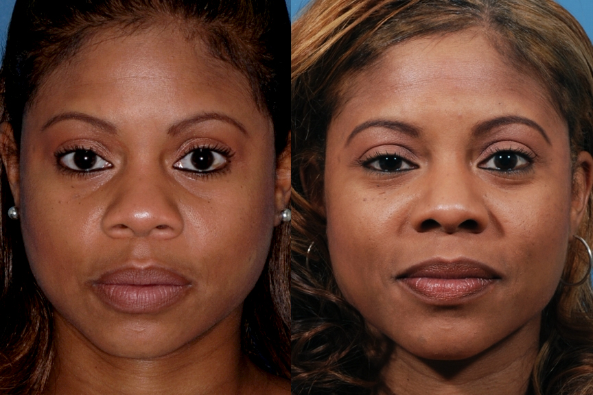 African American Rhinoplasty Specialist in Los Angeles, CA