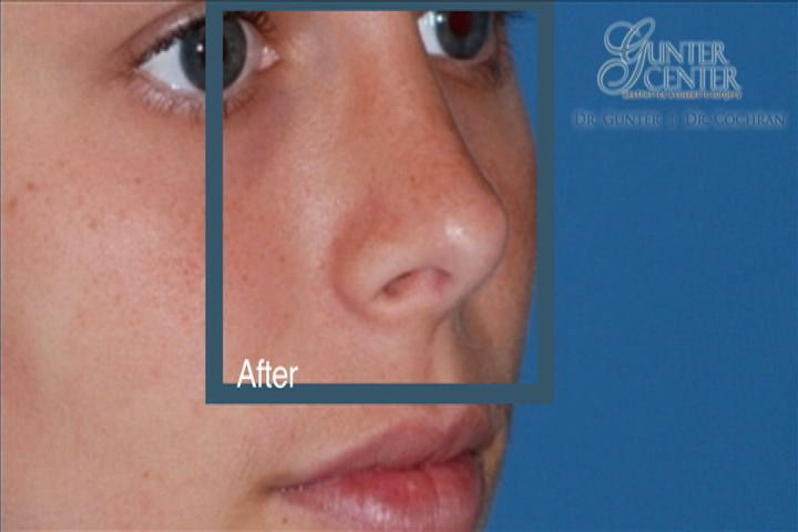 https://www.rhinoplasty-usa.com/wp-content/uploads/video/c4_v2