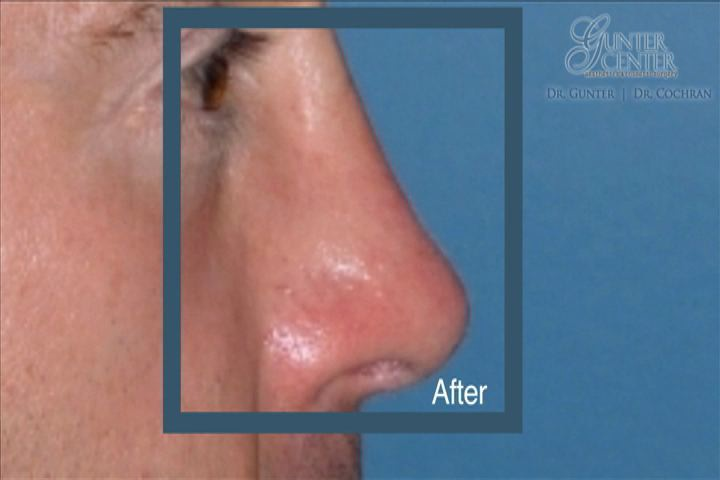 https://www.rhinoplasty-usa.com/wp-content/uploads/video/c4_v3