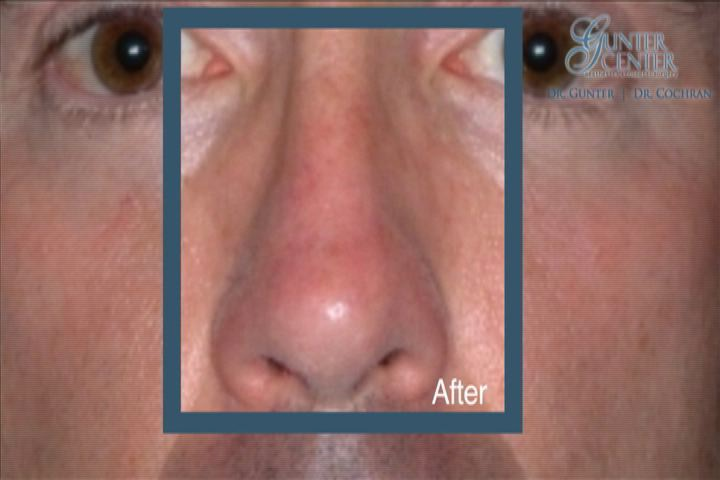 https://www.rhinoplasty-usa.com/wp-content/uploads/video/c5_v3